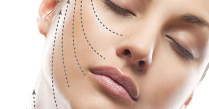 Tutto quello che dovete sapere sui fili estetici (PDO)